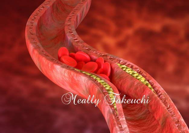 高コレステロールを下げる5つの自然療法